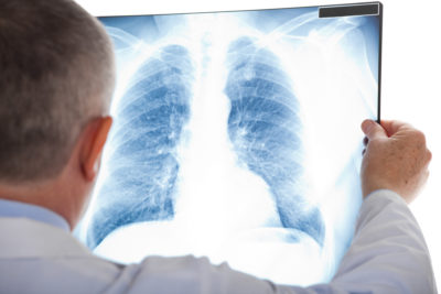 radiography, medic, x-ray, health, doctor, lung, asthma, cancer, pneumonia, people, person, checkup, test, isolated, oncologist, chest, white, medical, examination, pulmonary, stethoscope, disease, infection, worker, female, cancerologist, symptoms, nurse, hospital, care, breath, woman, physician, embolism, friendly, background, bronchitis, nodule, transplant, cancer specialistDieser Artikel ist erschienen inDer Hausarzt 02/2019Seite 10DownloadPDF-Dokument1 Seite(n)Größe: 62,09 kB