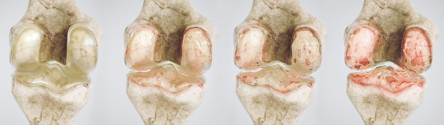 osteoarthritis of the knee in four stages - high degree of detail -- 3D Rendering